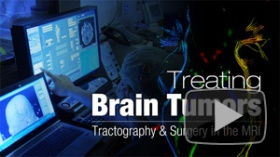 9-4-14 TREATING BRAIN TUMORS